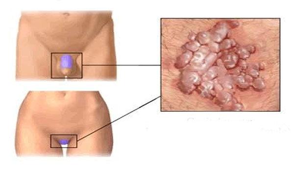 HPV vírus a férfiak kezelésében a papillómák oka paraziták