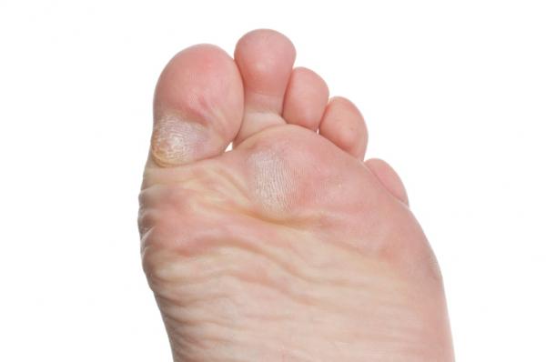 férgek fáj a lábak