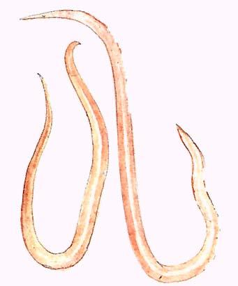 Paraziták kezelése Jakutszkban Légzési papillomatosis abláció