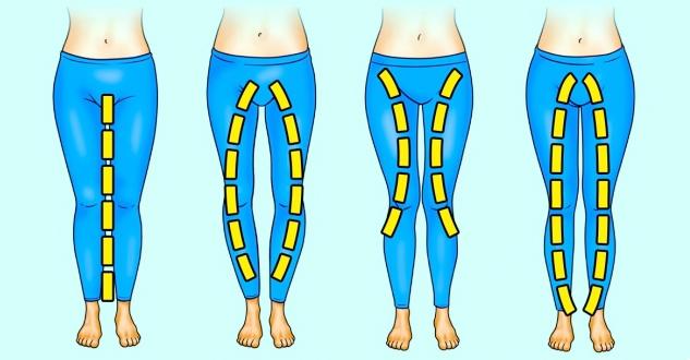 A lábujjak közötti száraz kallusz kezelése - Melanóma April