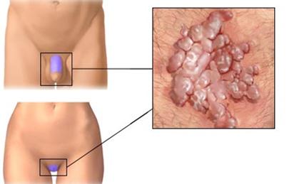 gyógyulás a genitális szemölcsök cauterizációja után)