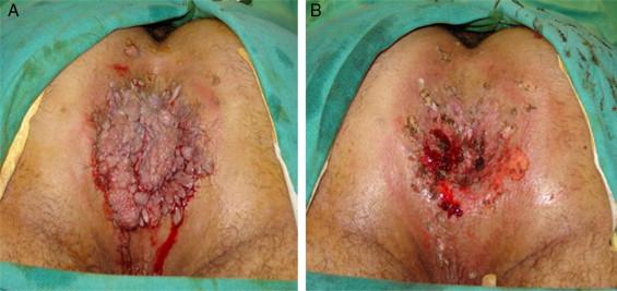 papillomavirus genital herpes soțul are papilom