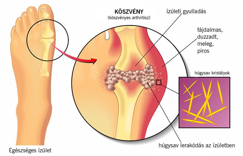 a helmintikus kezelés megelőzése