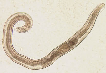 negatív enterobiosis mit jelent ez