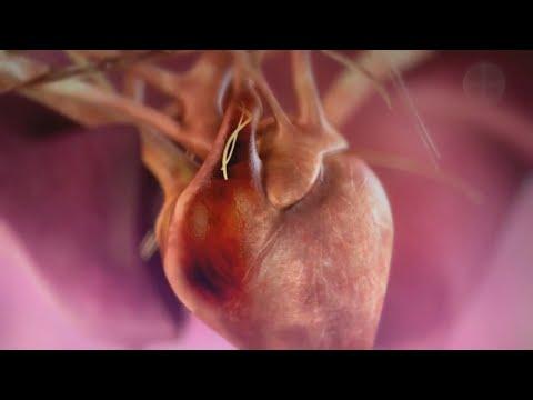 Demodex mi ez a parazita - Orvosilag parazita