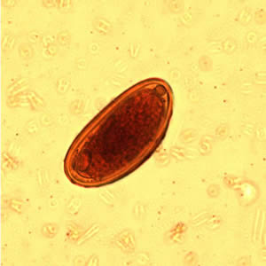 Enterobius-tojás